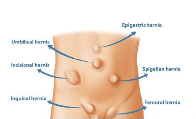Different Kinds of Hernia Procedures